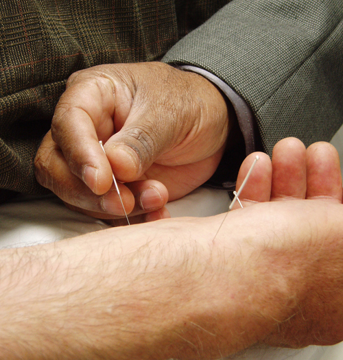 Acupuncture in hand